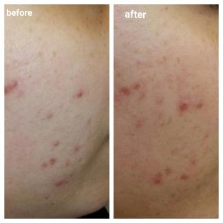 Dr Dennis Gross alpha beta peel before and after