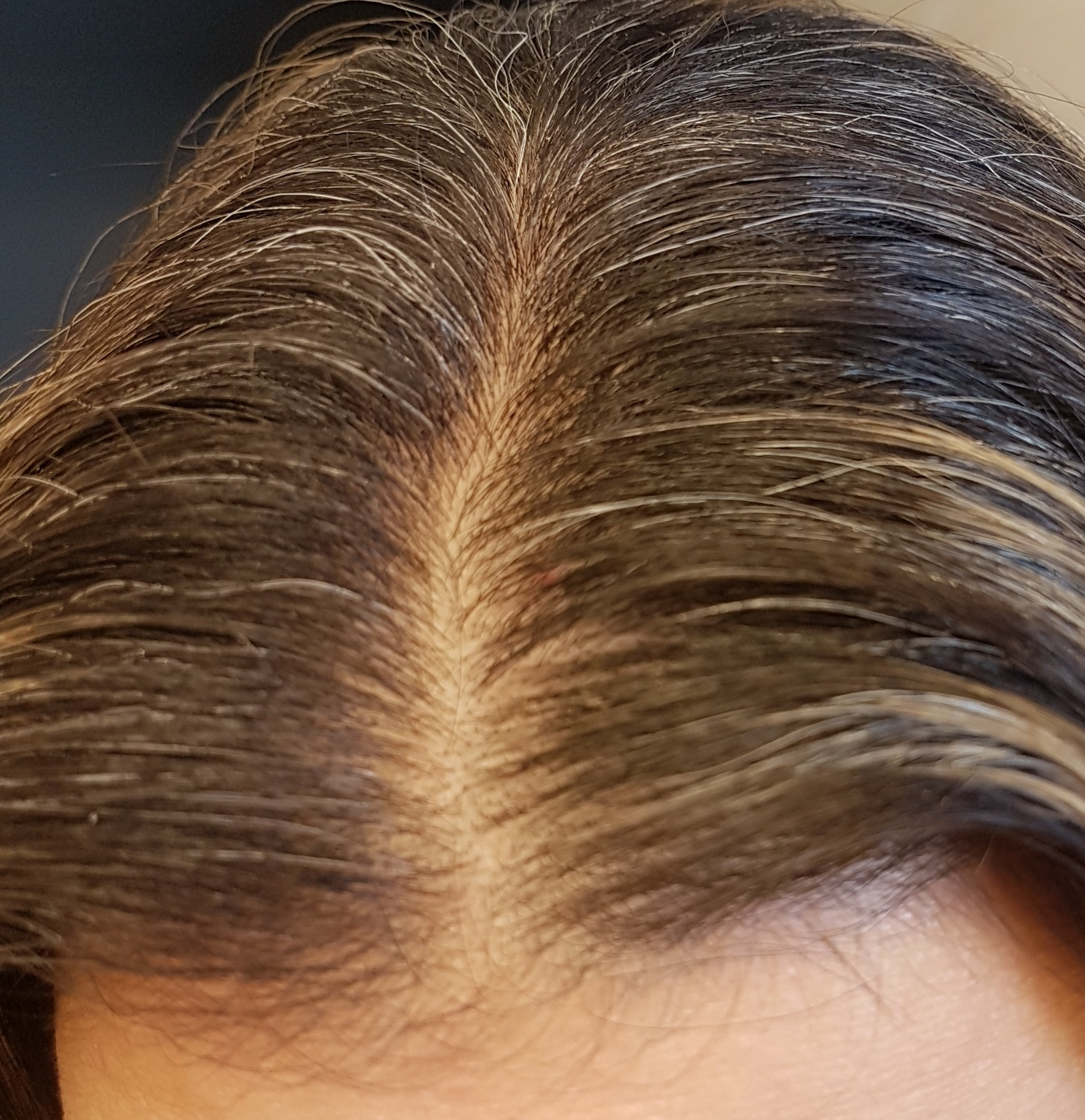 The Ordinary Multi-Peptide Serum for Hair Density | Raiyne