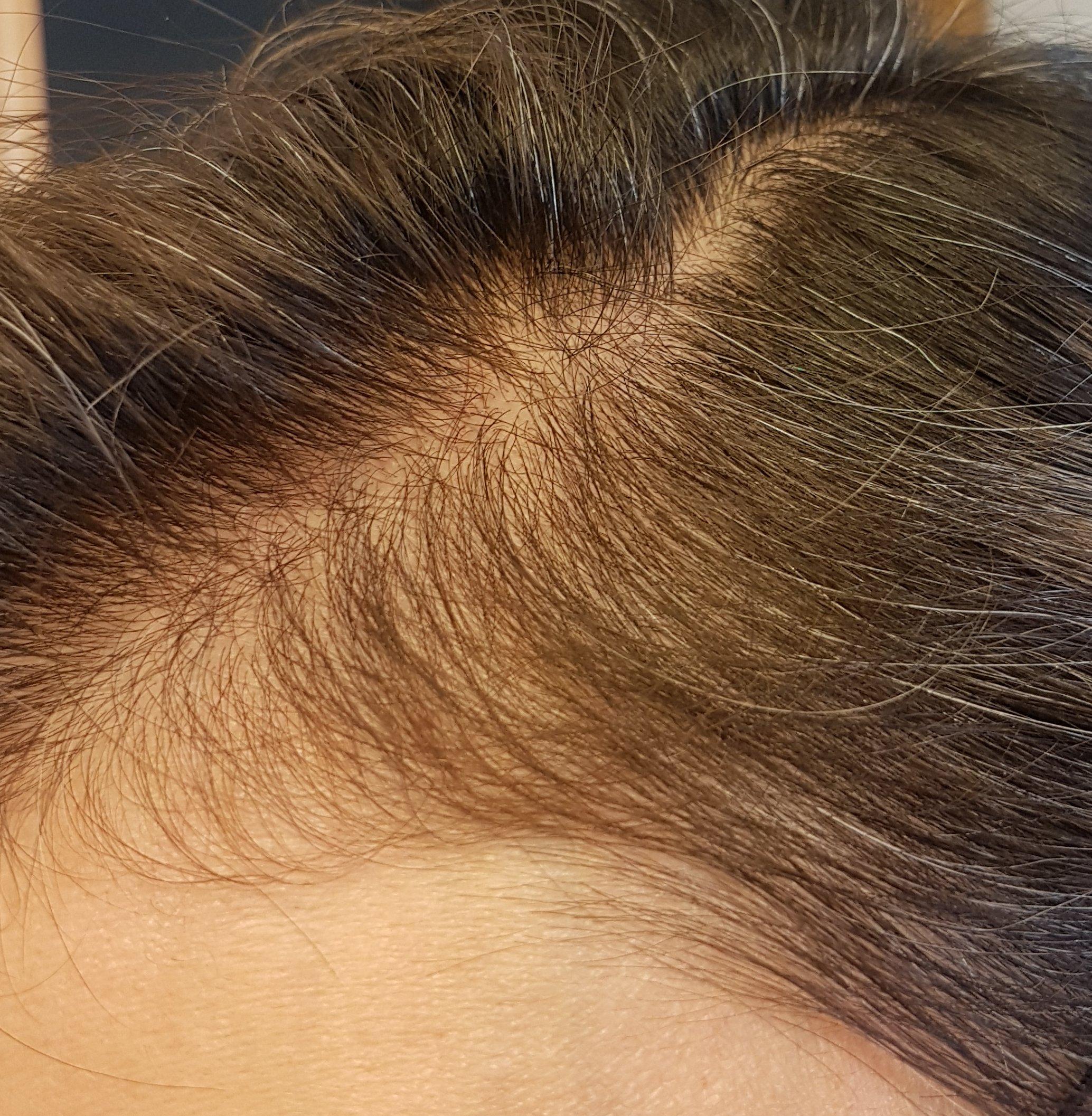 The Ordinary Multi Peptide Serum For Hair Density Raiyne On Beauty