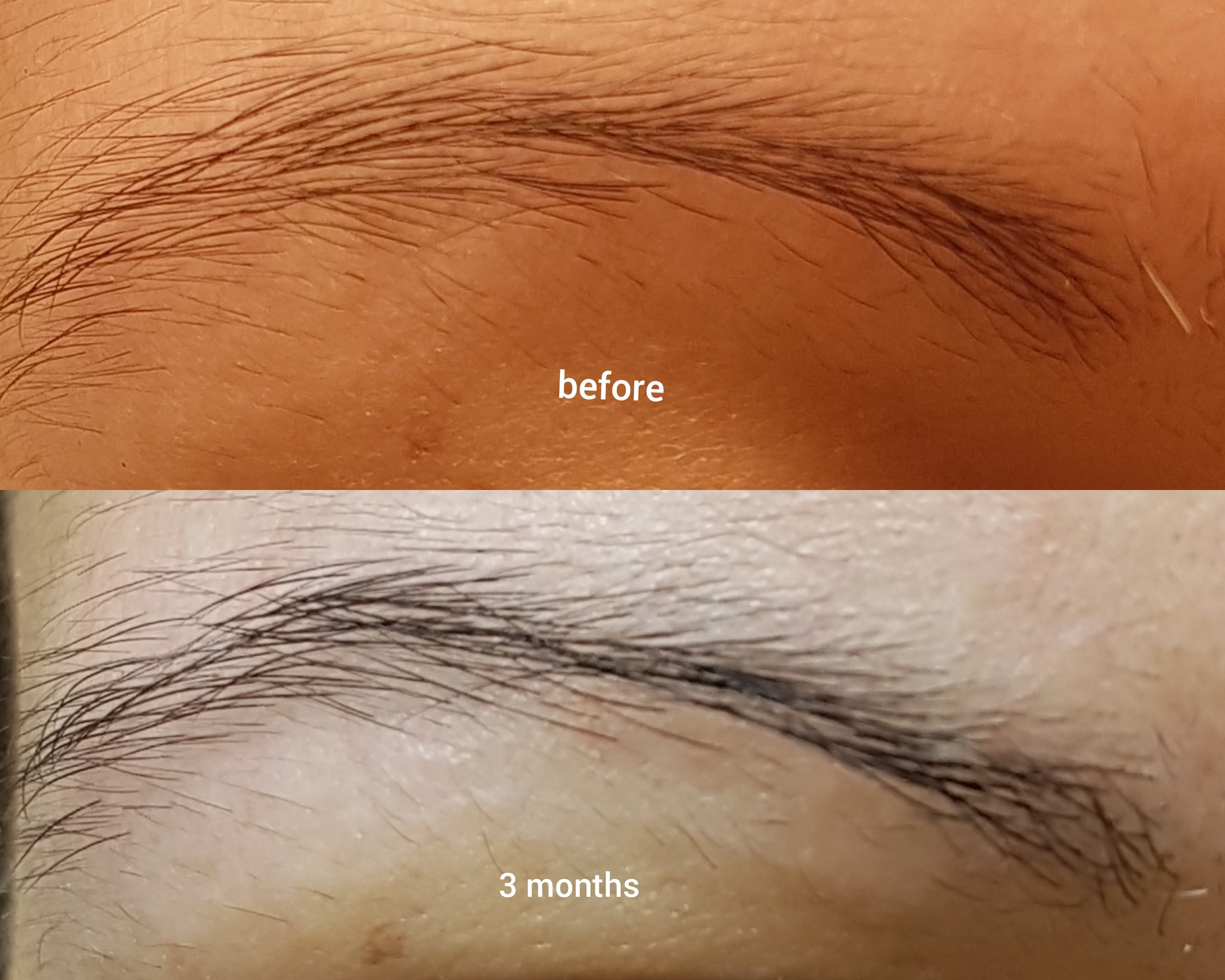 Three Month Results The Ordinary Multi Peptide Serum For Hair Density Raiyne On Beauty