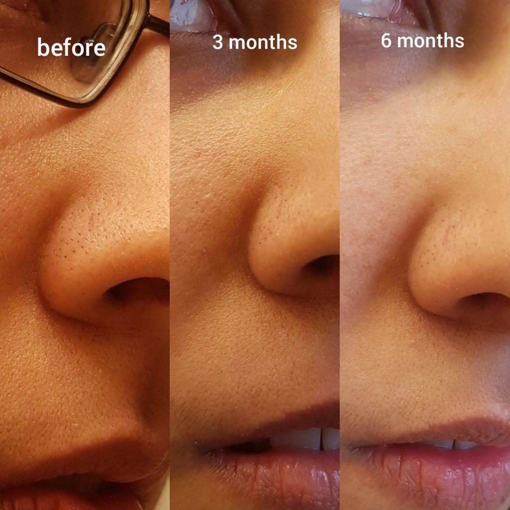 Skin Care | Raiyne On Beauty | Page 2